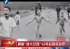"""越南""""战火女孩""""43年后接受治疗"""