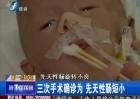 90天婴儿瘦如骷髅 家人急寻帮助