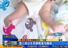 """儿童急诊室:婴儿刚出生双脚畸形似""""马蹄"""""""