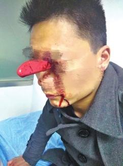 男子与妻子争执出意外 头插水果刀淡定就诊