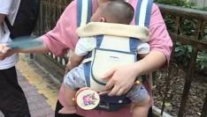 吓人!2月龄宝宝晒太阳,全身溃烂!